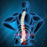 Spine bone showing back pain. Illustration Royalty Free Stock Image