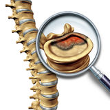 Spine Cancer Stock Photos