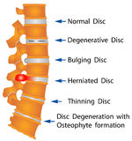 Spine conditions stock illustration