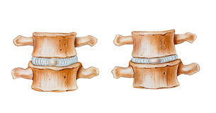 Spine - Cushioning Function of Intervertebral Discs. The cushioning function of intervertebral discs. Shown are a normal disc left and an abnormal disc right Stock Photography
