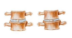 Spine - Cushioning Function of Intervertebral Discs Stock Images