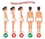 Spine deformation types and healthy spine comparison diagram poster. Spine deformation types and healthy spine comparison diagram poster with back bone Stock Photography