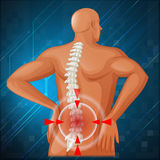Spine diagram showing back pain Stock Photos