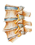 Spine - Lumbar Osteoarthritic and Spondylitic Arthritis. Osteoarthritic and spondylitic arthritis of the lumbar spine, showing degeneration of the intervertebral stock photo