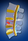 Spine, marrow, traumatic fractures vertebral Stock Images