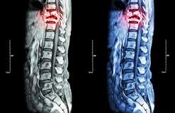 Spine metastasis Stock Images