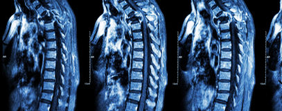 Spine metastasis ( cancer spread to thoracic spine ) Royalty Free Stock Photos