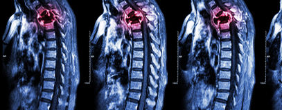 Spine metastasis ( cancer spread to thoracic spine ). ( MRI of cervical and thoracic spine : show thoracic spine metastasis and compress spinal cord ( Stock Photos
