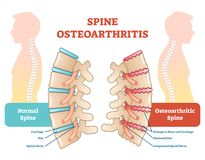 Spine osteoarthritis anatomical vector illustration diagram. Educational medical scheme information Stock Photos