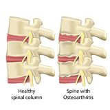 Spine with osteoarthritis ,spinal column medical vector illustration isolated on white background vector illustration