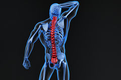 Spine pain, man with backache and ache in the neck Royalty Free Stock Image