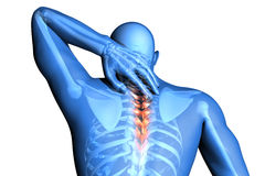 Spine pain - vertebrae trauma Stock Photos