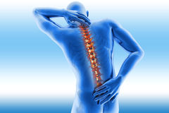 Spine pain - vertebrae trauma. 3D image spine pain - vertebrae trauma x-ray on a blue background Stock Photos