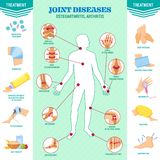 Spine problem. Joints diseases pain. Arthritis, osteoarthritis symptoms, medication treatment. Physiotherapy, diet therapy and body massage. Vector vector illustration
