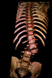 Spine, ribs fracture. CT-scan reconstruction. Royalty Free Stock Images