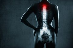 Spine in x-ray. The neck spine is highlighted. Royalty Free Stock Photo