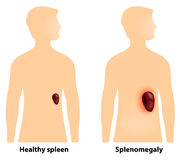 Splenomegaly or enlarged spleen Royalty Free Stock Photos