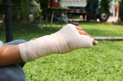Splint broken bone  hand Injured Stock Photo