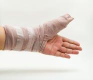 Splint finger a broken bone Stock Photo