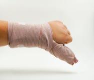 Splint finger a broken bone Royalty Free Stock Photo