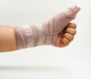 Splint finger a broken bone Stock Image