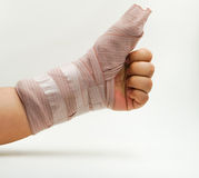 Splint finger a broken bone Royalty Free Stock Photos