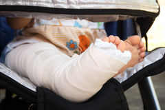 Splint right leg of baby. Royalty Free Stock Photography