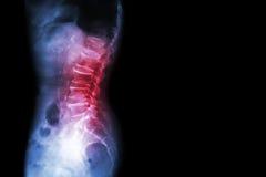Spondylose, Wirbelgleiten (Filmröntgenstrahl lumbo - sakraler Dornshow-Dorneinsturz, Abnahme am Diskettenraum, knöchernes Spornfo stockbild
