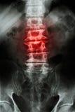 Spondylosis ilustração stock
