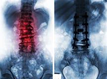 Spondylosis före och efter kirurgi Royaltyfria Bilder