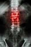 Spondylosis. Film x-ray L-S spine (lumbar-sacrum) of old aged patient and inflammation at spine stock illustration