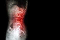 Spondylosis, Spondylolisthesis (lumbo do raio X do filme - colapso sacral da espinha da mostra da espinha, diminuição no espaço d imagem de stock