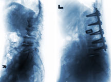 Spondylosis . Before and After surgery . Spondylosis . Film x-ray of lumbar spine and comparison between before surgery & x28; left image & x29; and after stock photos
