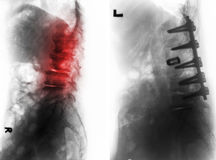 Spondylosis . Before and After surgery . Spondylosis . Film x-ray of lumbar spine and comparison between before surgery & x28; left image & x29; and after royalty free stock photography
