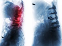 Spondylosis . Before and After surgery . Spondylosis . Film x-ray of lumbar spine and comparison between before surgery & x28; left image & x29; and after royalty free stock image