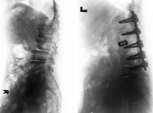 Spondylosis . Before and After surgery . Spondylosis . Film x-ray of lumbar spine and comparison between before surgery & x28; left image & x29; and after stock photo