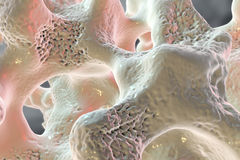 Spongy bone tissue affected by osteoporosis. 3D illustration Royalty Free Stock Photos