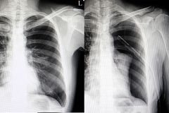 Free Spontaneous Pneumothorax Chest Film Royalty Free Stock Images - 124529529