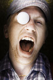 Sport Injury. Shouting Golfer Yells Out In Pain And Hurt After Coping A Flying Golf Ball To The Head In A Funny Sport Injury Concept Stock Photography