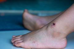 Sport injury - painful knee wound accident. Close up. Stock Image