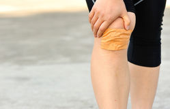 Sports injured knee Royalty Free Stock Photography