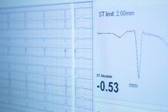 Sports performance fitness endurance evaluation test gas analysi Stock Photos