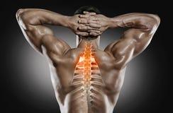 Sporty i opieka zdrowotna Kręgosłupa ból fotografia royalty free