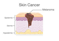 Spreading of Cancer Cell in Human Skin layer. Medical illustration Royalty Free Stock Photography