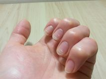 Spring avitaminosis of nails. White spots on nails due to lack of vitamins in spring stock photography