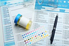 Sprzętu medycznego i laboranckiego testa formy zdjęcia stock