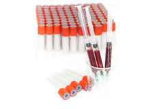 Spuit en bloedonderzoekbuis Stock Fotografie