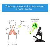 Sputum examination. World Tuberculosis Day. Infographics. Vector illustration on isolated background Royalty Free Stock Image