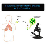 Sputum examination. World Tuberculosis Day. Infographics. Vector illustration on isolated background Royalty Free Stock Images