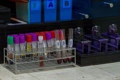 Sputum genexpert test voor Mycobacterietuberculose royalty-vrije stock afbeeldingen